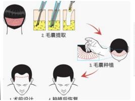 上海毛发种植