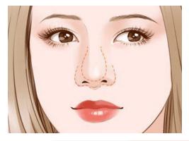 上海鼻部整形