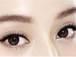 上海眼睑调整